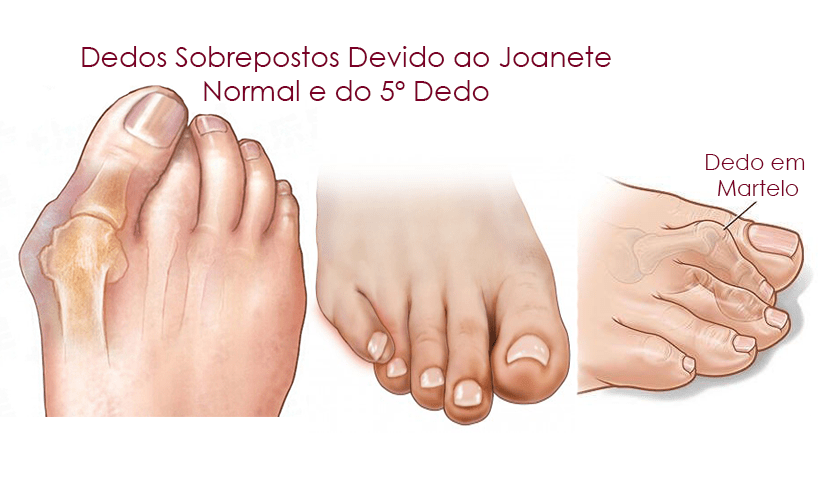 Uso excessivo de salto alto pode causar deformidades nos pés